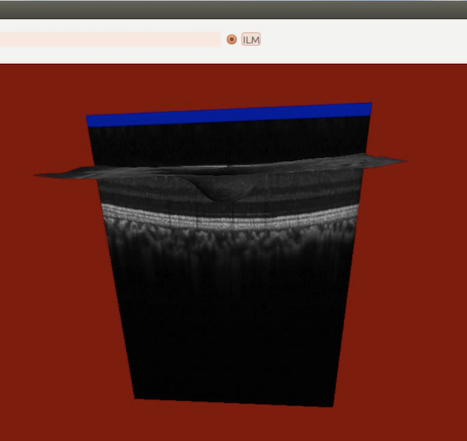 retinaview 3dslicer